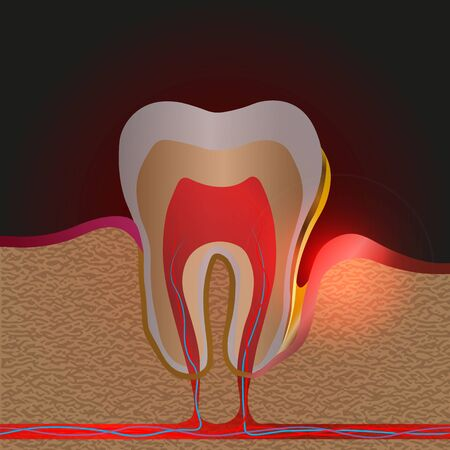 dental disease with pain and inflammation. Medical illustration of tooth root inflammation, Gum disease, pus in the gum pocket, plaque and dental calculus. Periodontitis, Periodontitis, gingivitis 10 eps