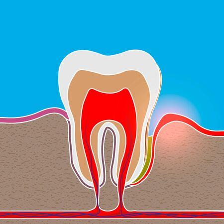 root inflammation, Gum disease, pus in the gum pocket, plaque and dental calculus. Periodontitis, Periodontitis, gingivitis