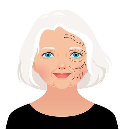 Ilustración vectorial hermosa mujer caucásica madura con líneas de perforación en la cara antes de la operación de cirugía plástica