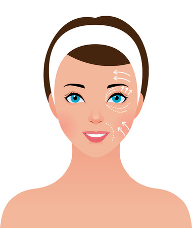 Stock vector illustration portrait of beautiful girl with perforations on the face for plastic surgery Ilustração