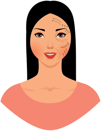 Portrait of a beautiful asian woman with a plastic surgeon pattern on her face stock vector illustration