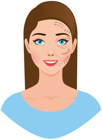 Beautiful woman ready for plastic esthetic surgery with marks drawn on her face Ilustração