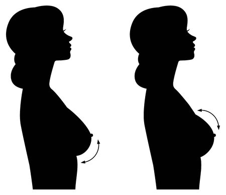 Silhouette woman in profile of different forms of breasts and breast implants. Breast augmentation Ilustrace
