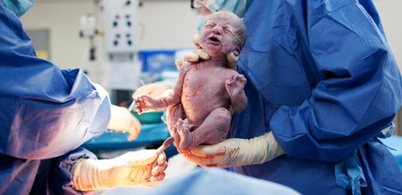 Baby being born via Caesarean Section coming out Stock Photo - 6965693