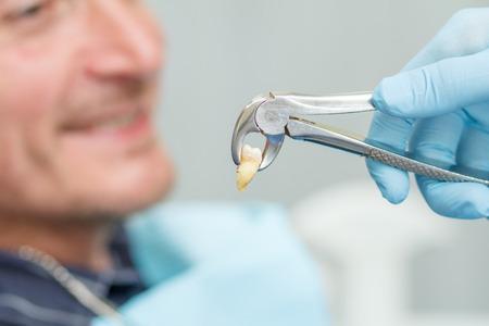 De tandarts heeft een zieke tand van patiënt in tandbureau gehaald. Concentreer u op een roestvrijstalen tandheelkundige tang of tang en een uitgeholde lagere tand erin. Tandheelkunde Stockfoto - 82555667