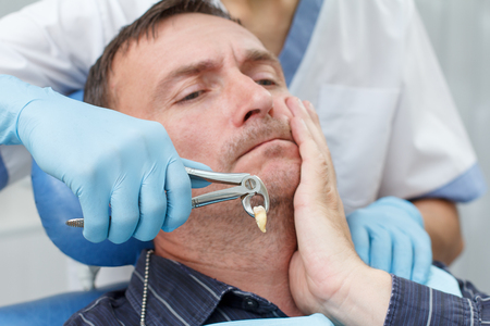 Dentist has extracted a sick tooth from patient in dental office. Focus on stainless steel dental tongs or pliers and extracted lower tooth in it. Dentistry Stock Photo