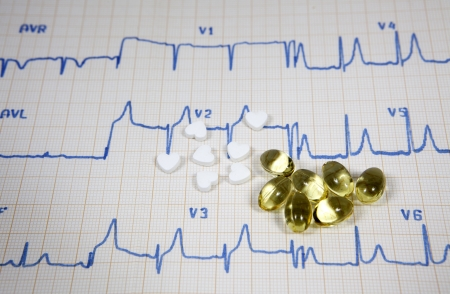 Cardiogram, pills and vitamins on white background Stock Photo