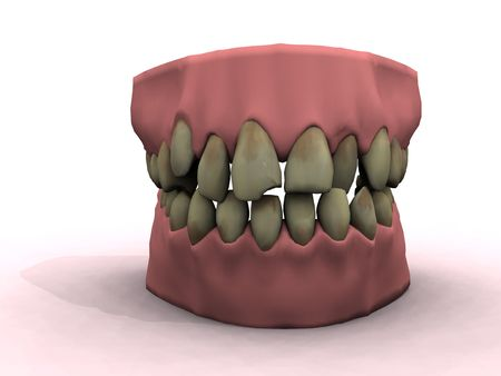 teeth show bad decay and ugly coloring Stock Photo