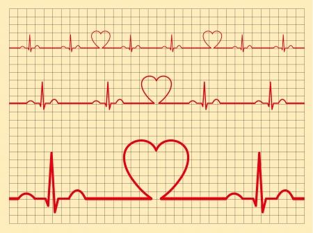 Heart monitor Stock Vector - 14557275