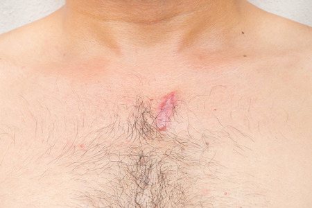 irritation: Wound from surgery at the chest two month and 1 days, Itching and irritation when wearing clothes.