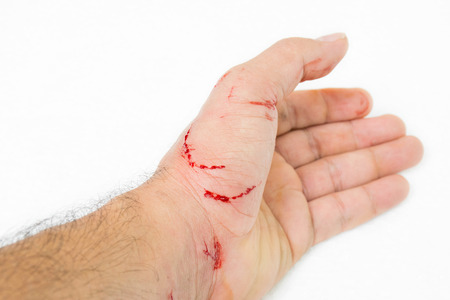 Fresh wound and blood from a bite cat