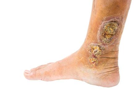 ulc�re: ulc�re de jambe veineux chroniques Banque d'images