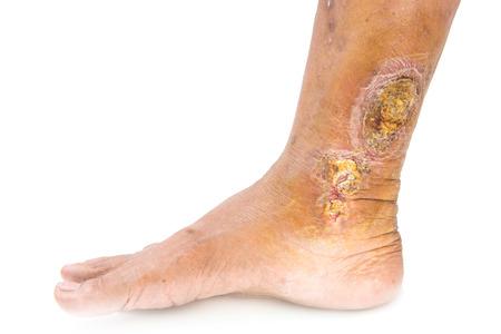 chronic wound on the leg Stock Photo