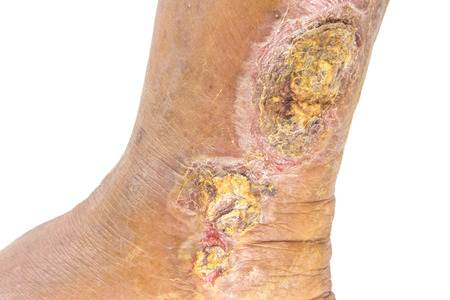 chronic wound on the leg Standard-Bild
