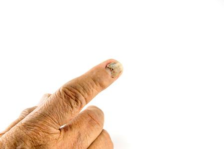 hemorragia: desprendimiento de la u�a del dedo de la mujer de edad