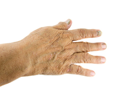 chafe: nail detachment  of old womans finger Stock Photo