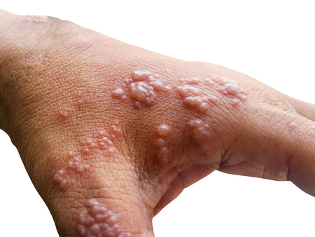 La peau a infecté le virus de l'herpès zoster sur les bras