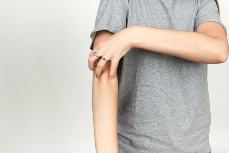 Girl in grey shirt scratching her arm. Scabies. Scratch the hand  over gray background Stock Photo
