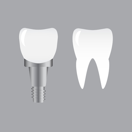 implanted: Tooth implants and normal tooth isolated on white background. Screw implant, dental inplant tooth