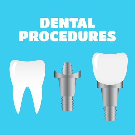 procedures: Stomatology and dental procedures vector illustration set