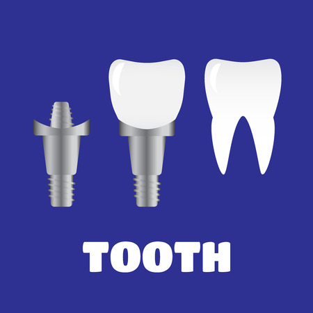 tooth implants and normal tooth isolated on white background