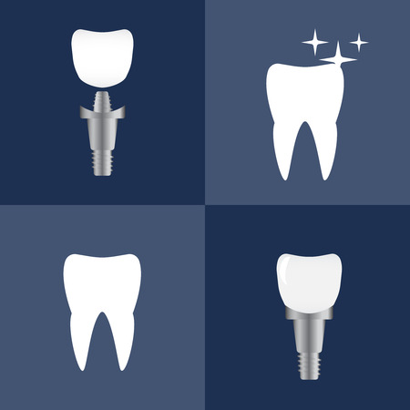 Tooth implants and normal teeth. Dental bone implantation. Anatomical tooth vector