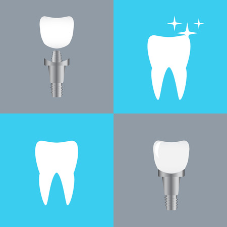 Healthy teeth and dental implant. Tooth implants and normal teeth vector Illustration
