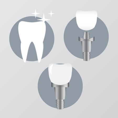 Dental health care and oral hygiene vector. Stomatology prosthesis, implantation flat vector illustration