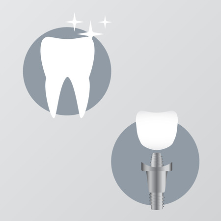 Tooth anatomy and damage. Healthy teeth and dental implant