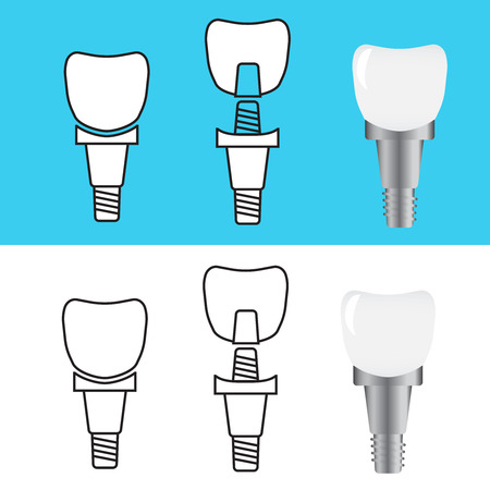 Excellent Vector Tooth. Stomatology prosthesis, implantation flat vector illustration Vectores