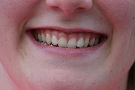 closeup of smile with white healthy teeth Stock fotó