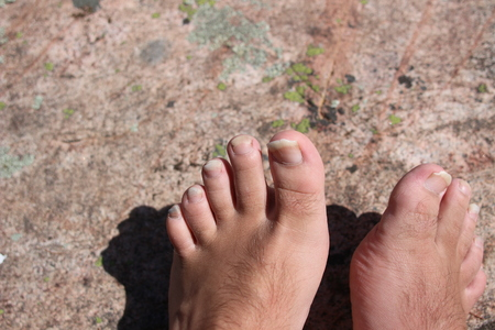 Closeup of a human foot and toes with cracked and peeling toe nails. Imagens