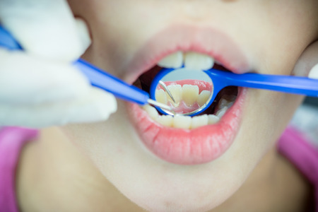 dental calculus: close-up medical dentist procedure of teeth polishing with cleaning calculus, focus on mirror Stock Photo