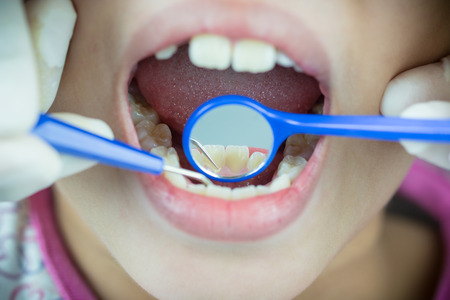 dental calculus: close-up medical dentist procedure of teeth polishing with cleaning calculus Stock Photo