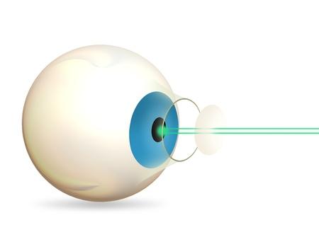 laser surgery: Laser Eye Surgery Stock Photo