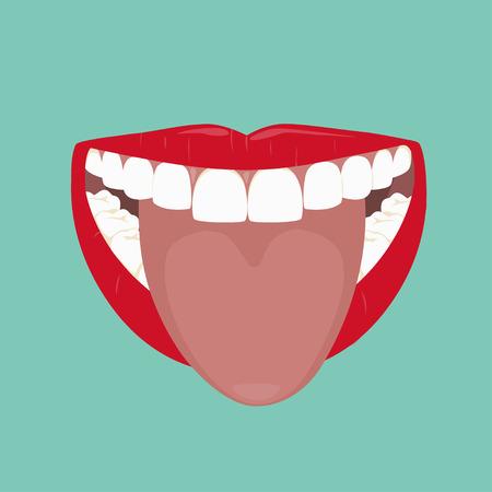 mal aliento: Wide Open Boca y lengua