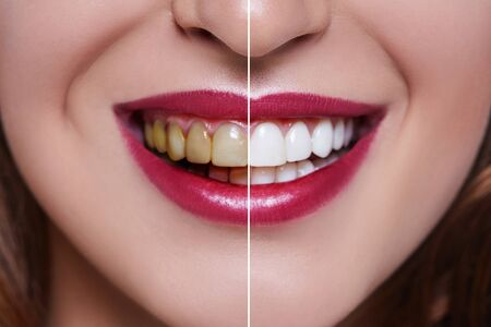 Woman Teeth before and after dental treatment. Teeth Whitening. Happy smiling woman. Dental health Concept. Oral Care, teeth restoration. Bad teeth. Banque d'images - 129201865