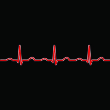 pulse trace: ecg waves in red on a black background