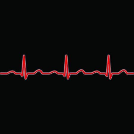 monitoreo: Ondas del ECG en rojo sobre un fondo negro