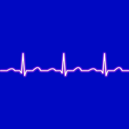 heart ecg trace: ecg waves in red on a black background