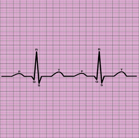ecg of heart on graph paper Stock Photo