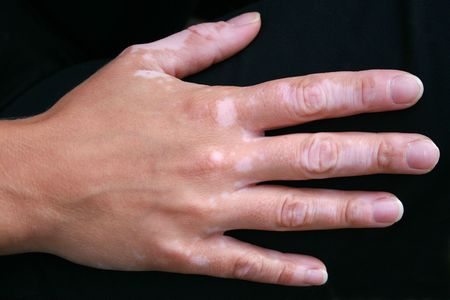 A hand with vitiligo skin