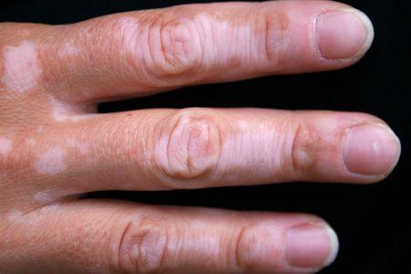 A hand with vitiligo skin