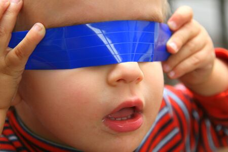 Baby boy with blue tape over eyes