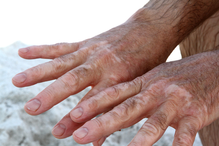 Hands of a male with vitiligo skin condition Stock Photo