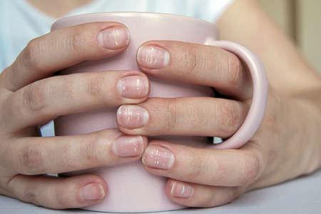 Many white spots on fingernails (Leukonychia) due to calcium deficiency or stress. Female hands holding mug Reklamní fotografie