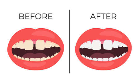 Woman lips with before and after view of whitening teeth vector illustration. Vecteurs