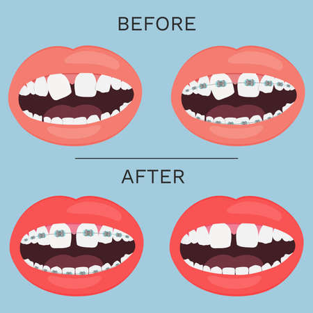 Open mouth, teeth with brace correction before and after vector illustration. Vectores