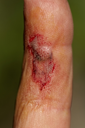 injure: Flesh wound with blood on male finger