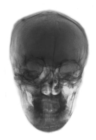 Film x-ray photo